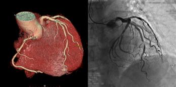 冠動脈CT・造影